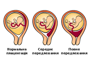 Передлежання плаценти