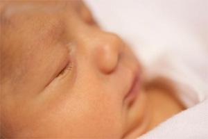 Жовтяниця у новонародженних