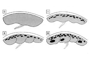 Ступінь зрілості плаценти