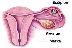 Позаматкова вагітність фото