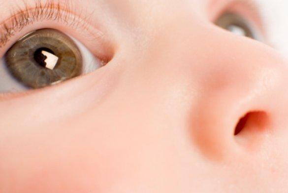Кон'юнктивіт у дітей