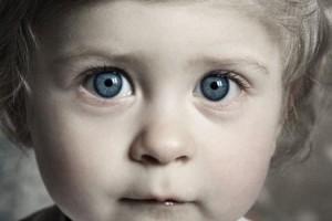 Що робити У дитини постійно синці під очима