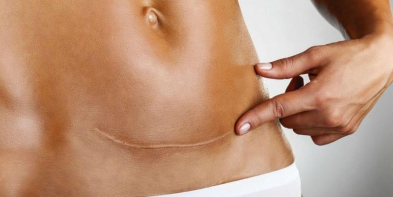Післяпологові шви: терміни загоєння, особливості догляду